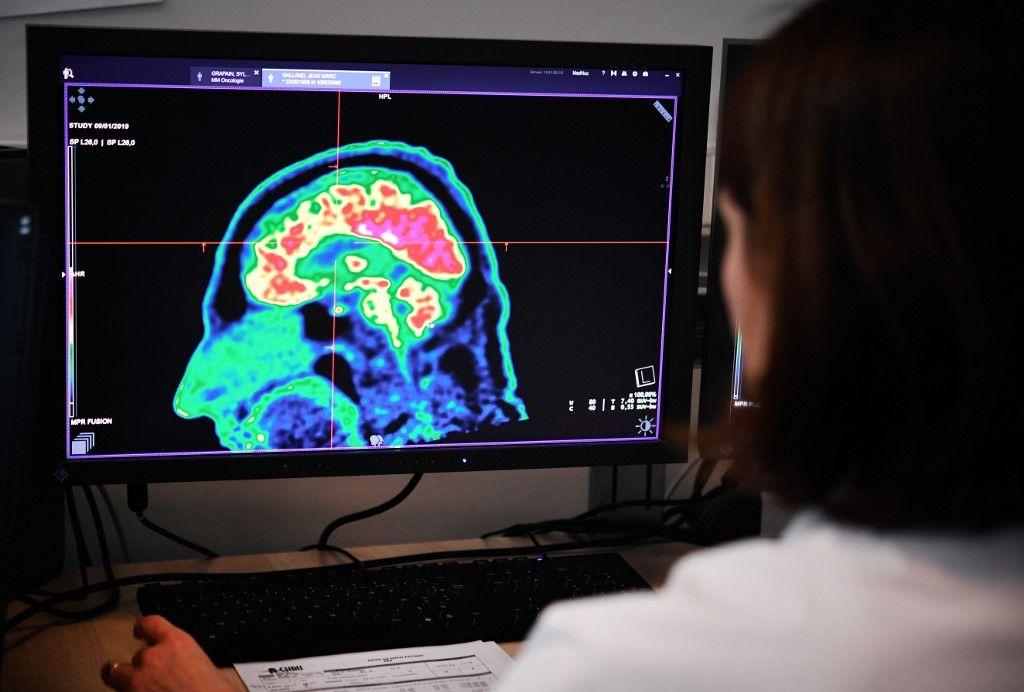 Un Américain retrouve le sens du toucher grâce à un implant cérébral