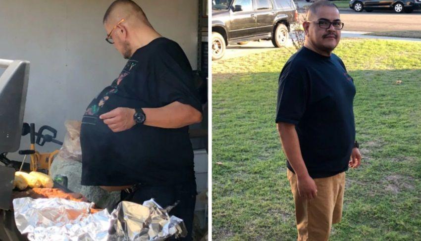 """Il pensait avoir un """"ventre à bière"""" : c'était une tumeur de 35 kilos"""