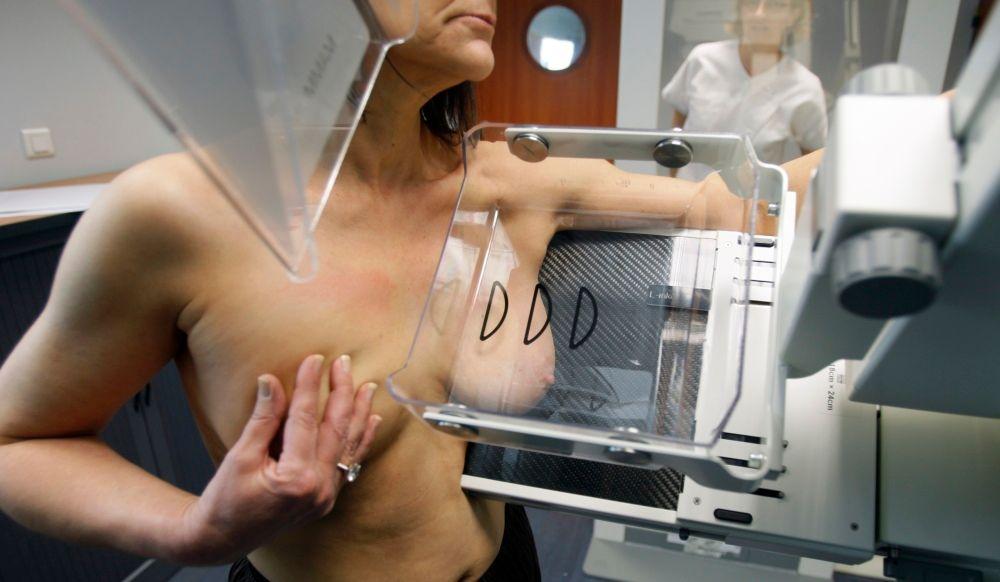 Le cancer du sein en hausse aux Etats-Unis