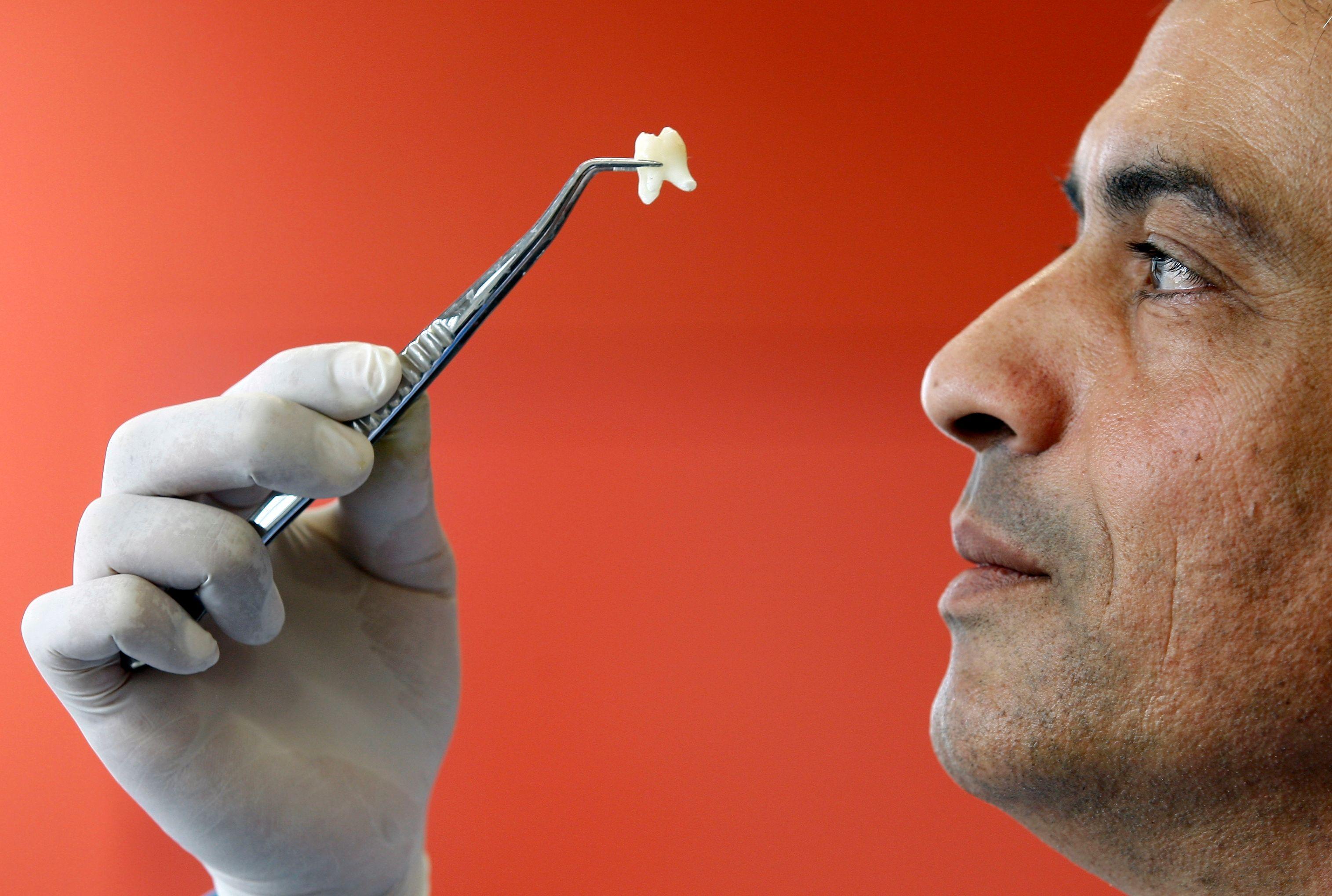La nouvelle classification commune des actes médicaux (CCAM) bucco-dentaires doit entrer en vigueur le 1er juin.