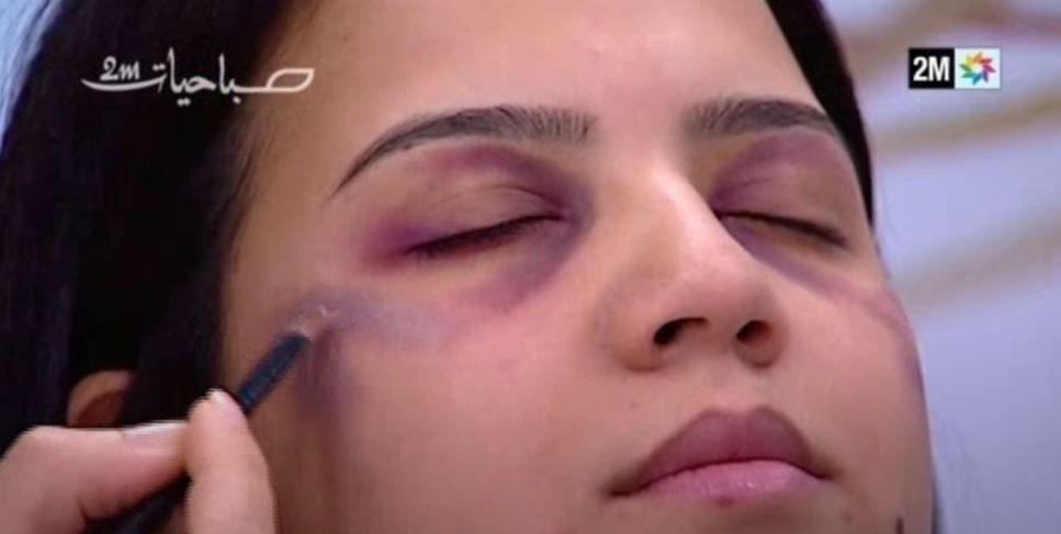 """Maroc : une émission télévisée a diffusé """"un tuto maquillage"""" pour femmes battues"""