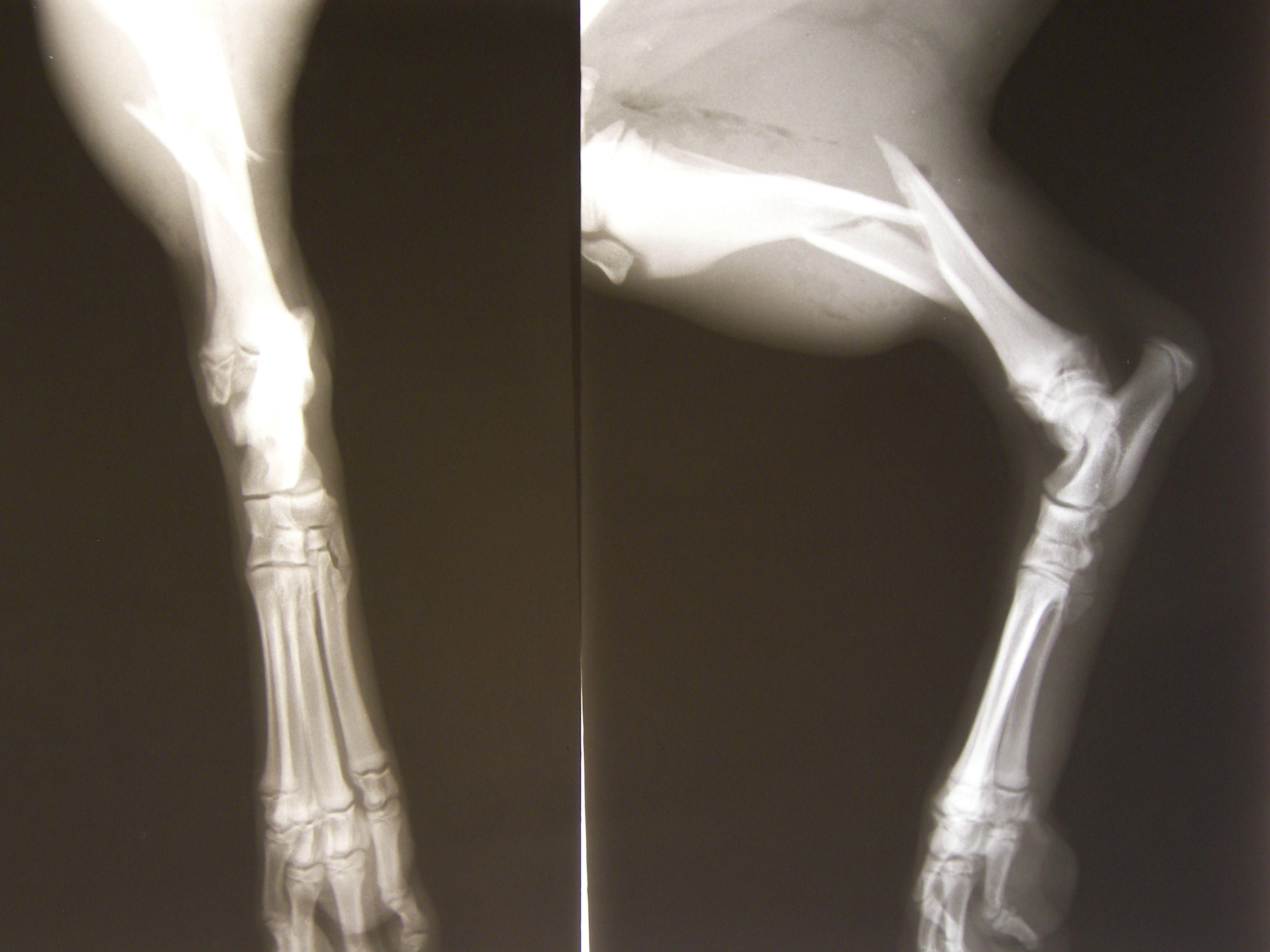 Cette technique permettrait de soigner les fractures sans tous les désagréments liés à la greffe osseuse habituelle