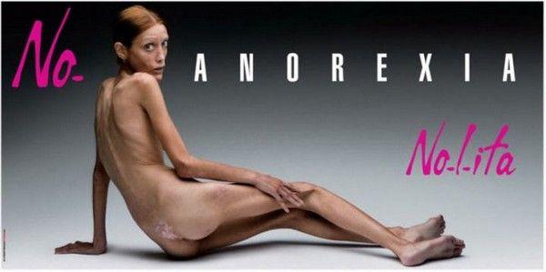 Cette photo du mannequin anorexique aujourd'hui décédée Isabelle Caro a été censurée par Facebook.