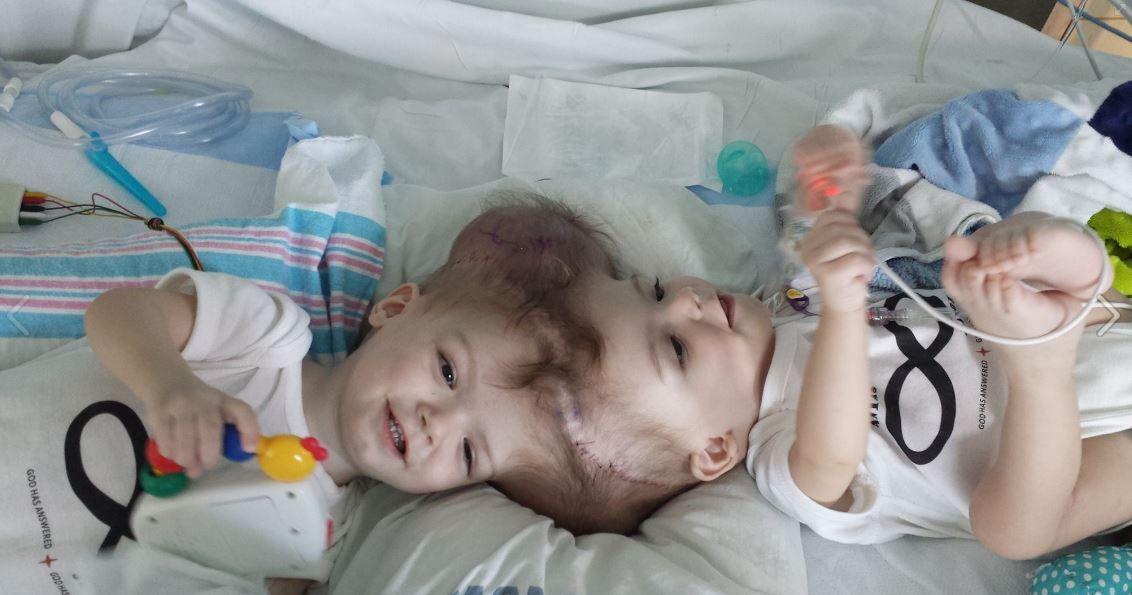 Deux jumeaux siamois reliés par la tête ont été séparés