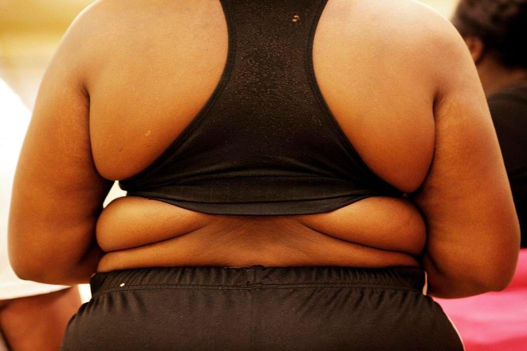 Le coût de l'obésité est estimé à 2000 milliards de dollars dans le monde.