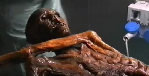 Quand un microbe de l'estomac d'Otzi, l'homme des glaces, nous éclaire sur l'histoire des migrations humaines