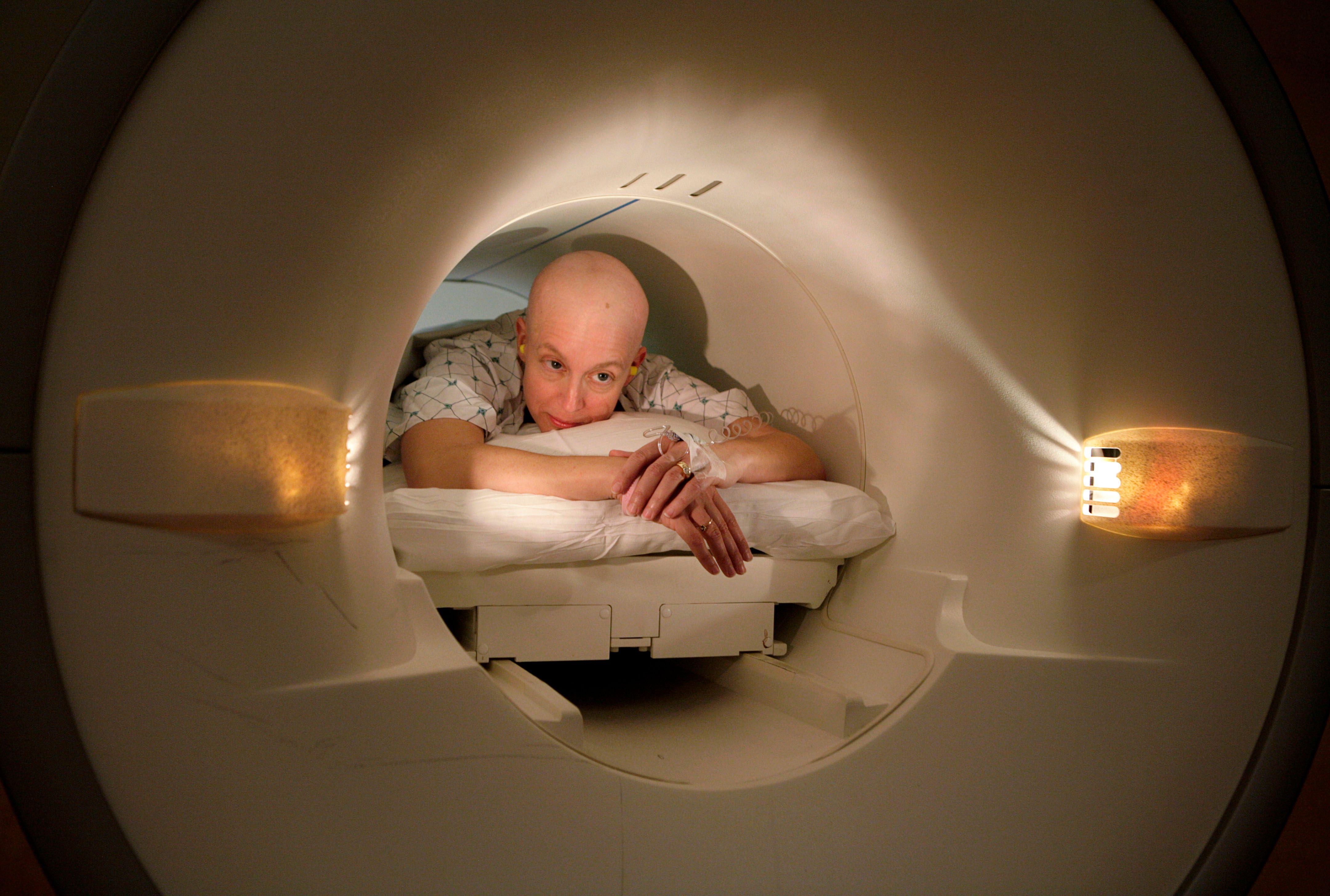En 2030, le cancer tuerait 5,5 millions de femmes par un an dans le monde